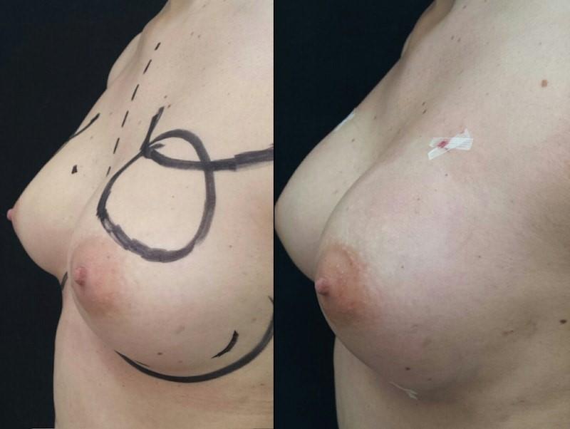 résultat-chirurgie-seins-Tunisie