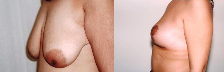 lipofilling mammaire avant et après