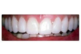 Correction du sourire gingival avec du Botox, les conseils d'expert