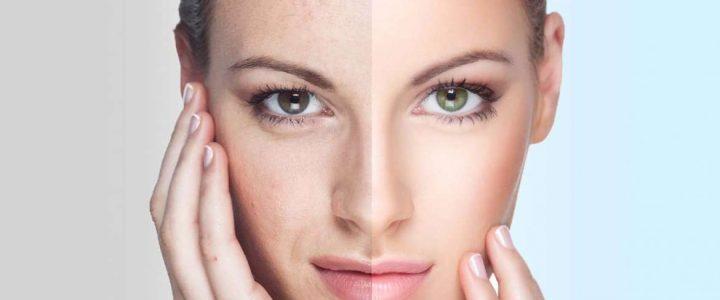 Les solutions pour rajeunir le visage sans chirurgie